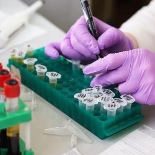 Coronavirus, i nuovi positivi scendono a 91 in Liguria, ma salgono gli ospedalizzati (+11)