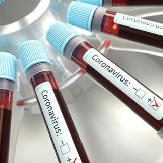 Coronavirus: 169 i nuovi positivi in Liguria, 82 nel genovese