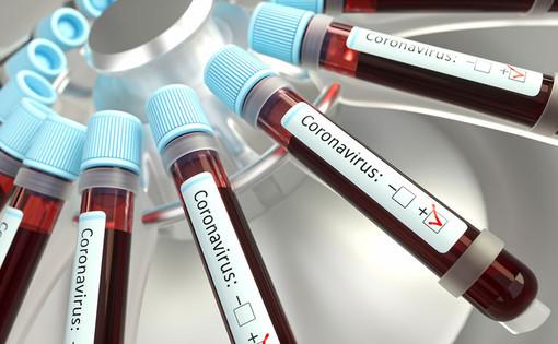 Coronavirus, rialzo dei nuovi positivi (+97). Calano ancora gli ospedalizzati (-7) ma aumentano le terapie intensive (+2)